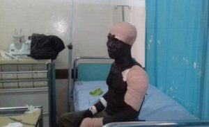 One of the victims of the recent Apaa land skirmishes receives treatment. Courtesy photo.