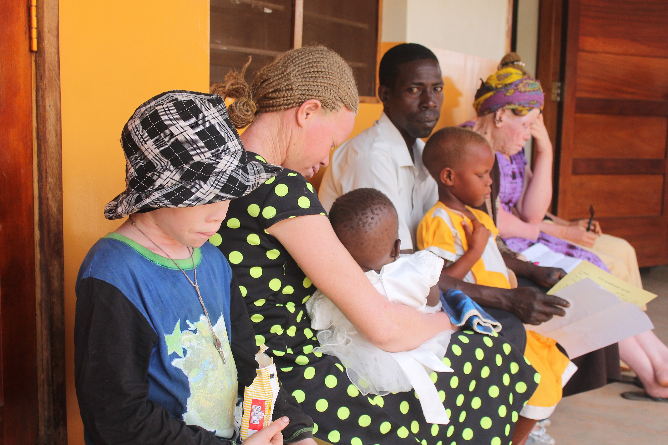 Albinos queue up for treatment during medical camp at Gulu Regional Referral Hospital, Gulu town. |The Albinism community in Uganda has decried the continues discrimination and human rights abuses (FILE PHOTO)