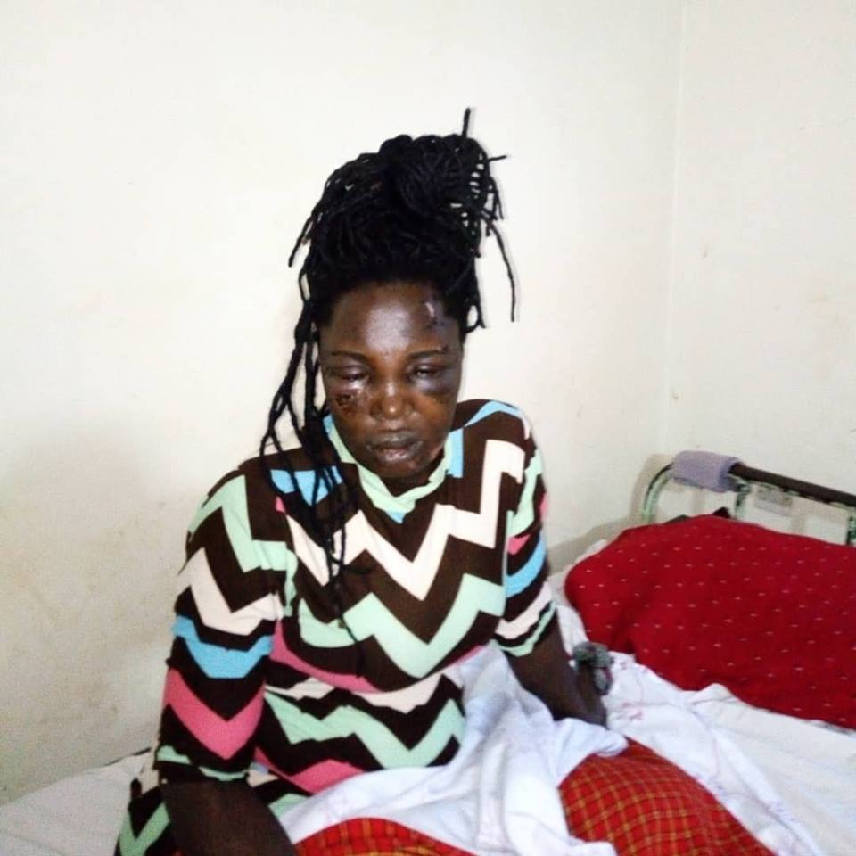 Police in Mukono have detained a one, Rehema Kabayana 24, for allegedly cutting off her boyfriend's private parts (PML Daily PHOTO)