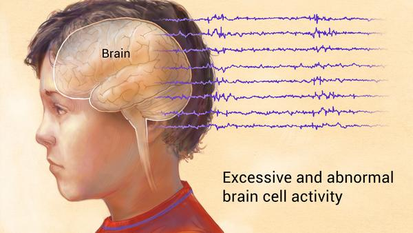Epilepsy is a disorder in which nerve cell activity in the brain is disturbed, causing seizures.